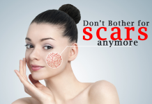 How To Get Rid Of Acne Scars With Anti-Scars Face Cream?