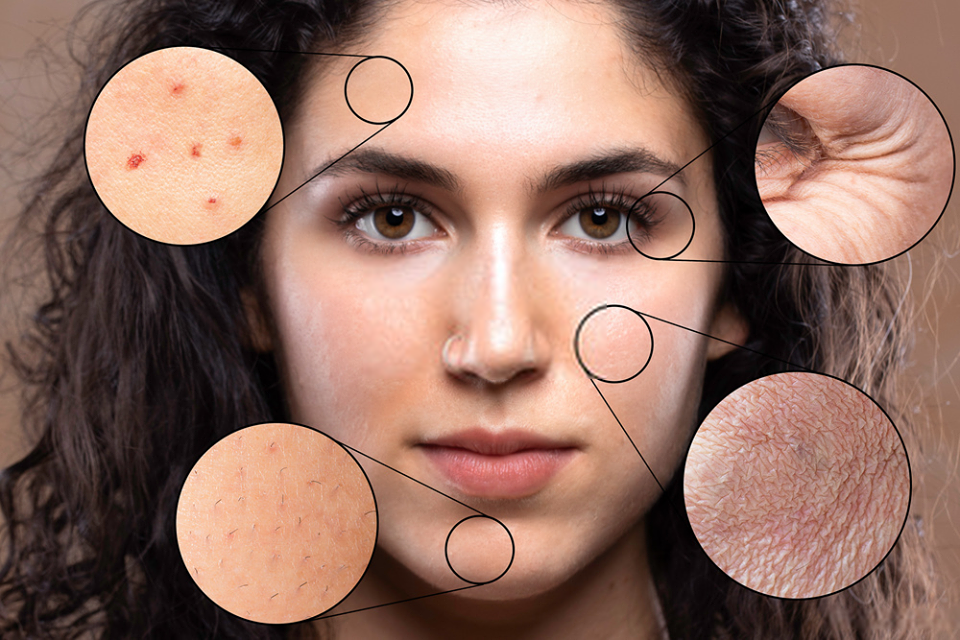 Improve Your Skin Health by Following These Simle Tips